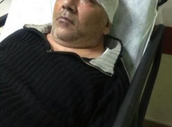 Gazeteci Cemal ORAL Feci şekilde Darp edildi